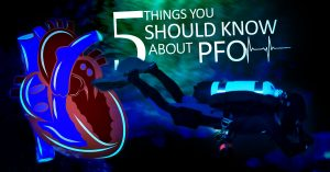 5-things-you-should-know-about-PFO